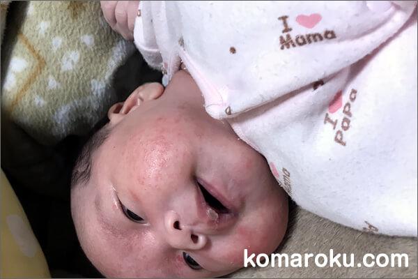 アロベビーミルクローションを1週間使ってみた娘の顔